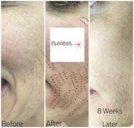 Plasma Pen Skin Tightening Treatment using Plasma Pen Pro. Full Face Lift Using Plasma Pen Treatment.