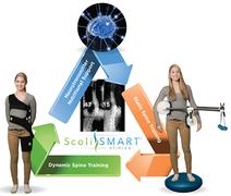 ScoliSMART Comprehensive Scoliosis Management