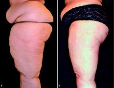 This shows the results of lymph sparing liposuction for the treatment of lipedema on the thighs of a middle aged woman. Liposuction is one of the most effective treatments for lipedema.
