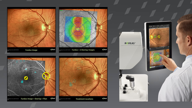 Create multimodal reports with Navilas 577s - the only navigated retina laser. Easily document image-guided laser treatments and share knowledge with colleagues, residents and patients.