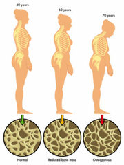 Brian Cable MD releases article on osteoporosis and osteopenia