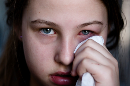 """""""Pink eye"""" is most often used to refer to viral conjunctivitis, which affects kids and adults alike."""